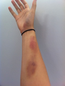 Krav Maga injuries: bruises after outside 360 defenses on arms